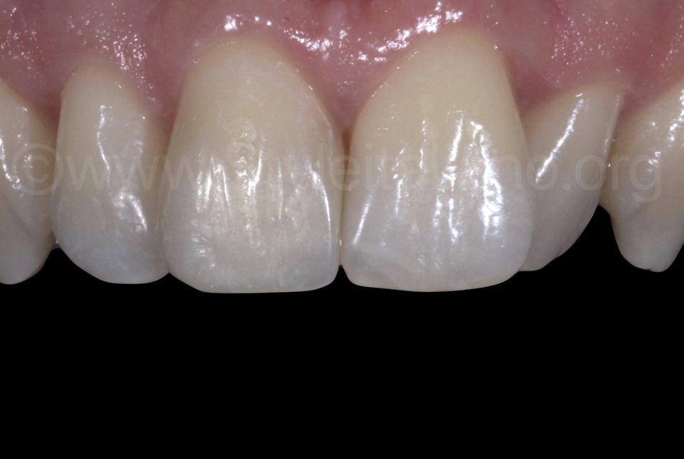 composite restoration after rehydration