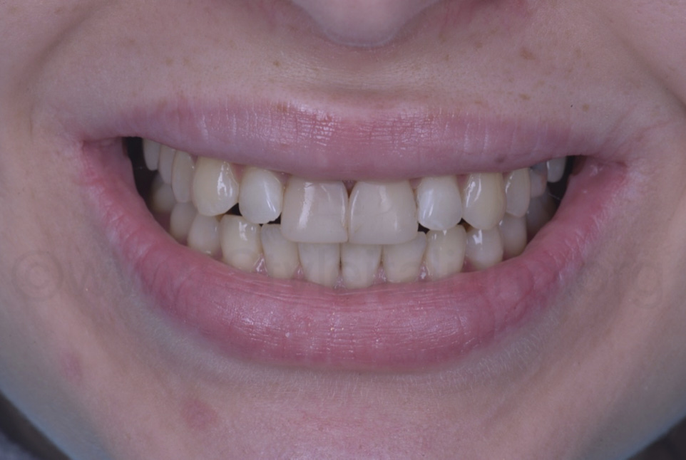 smile with old composite on central incisors