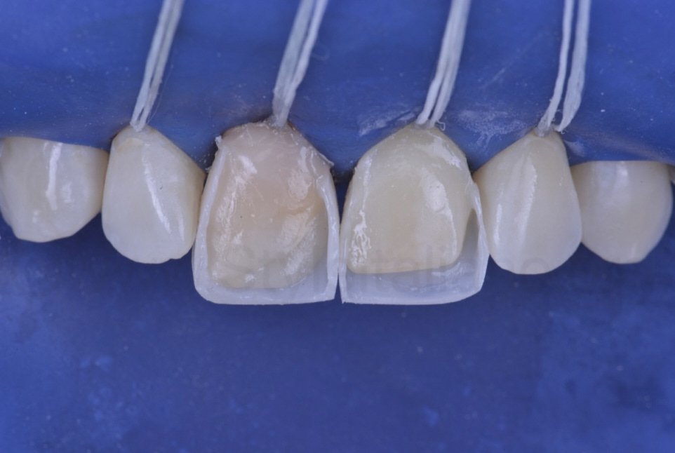 composite shape box for incisors before layering
