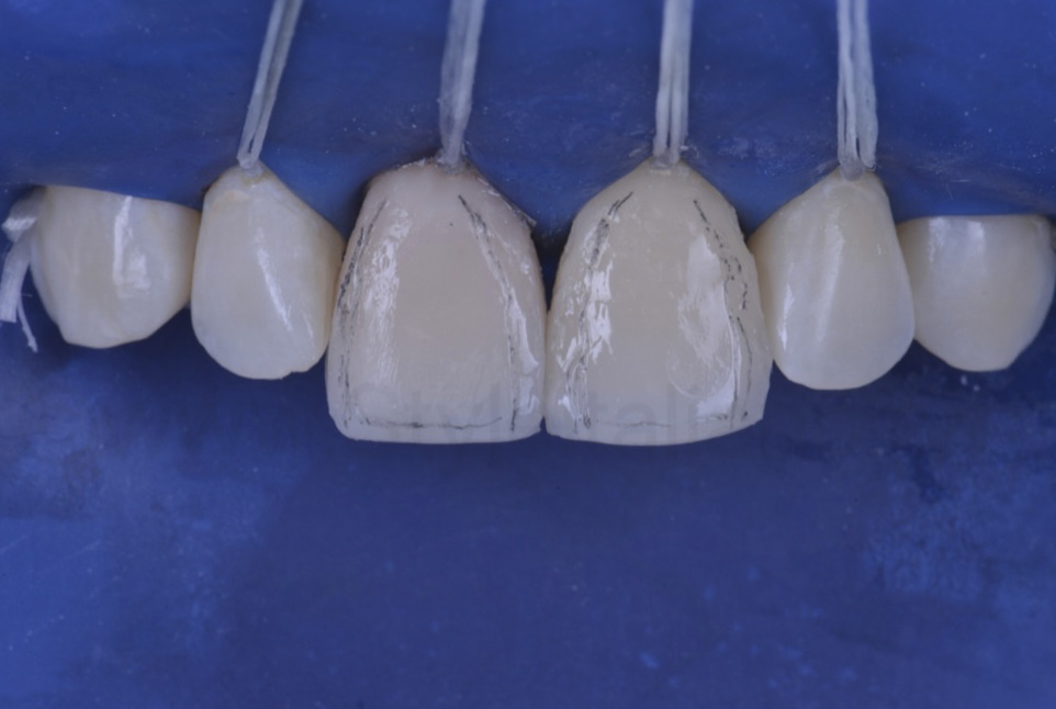 pencil marks for angle line definition on direct veneers