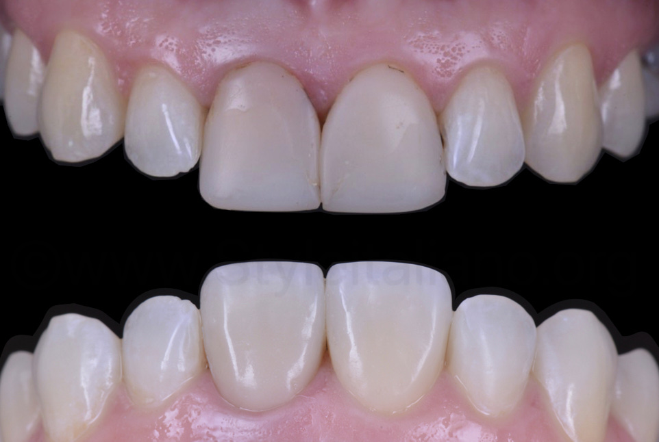 boere and after replacement of composite restorations