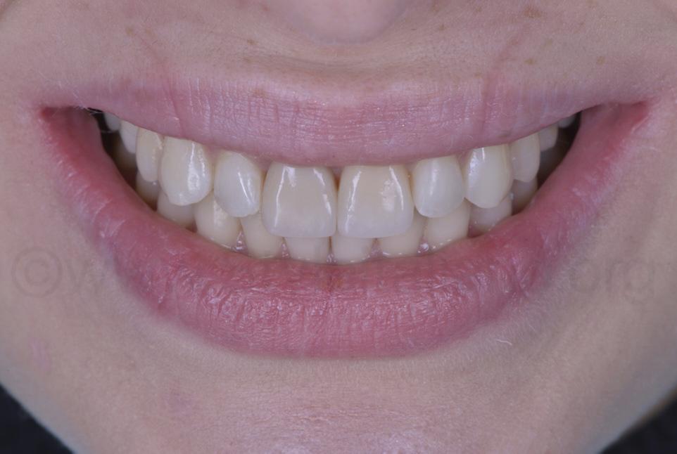 smile with natutal looking composite veneers