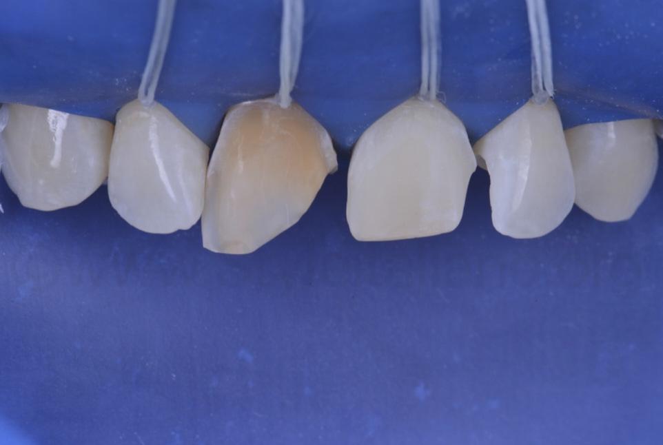 severely discoloured central incisor