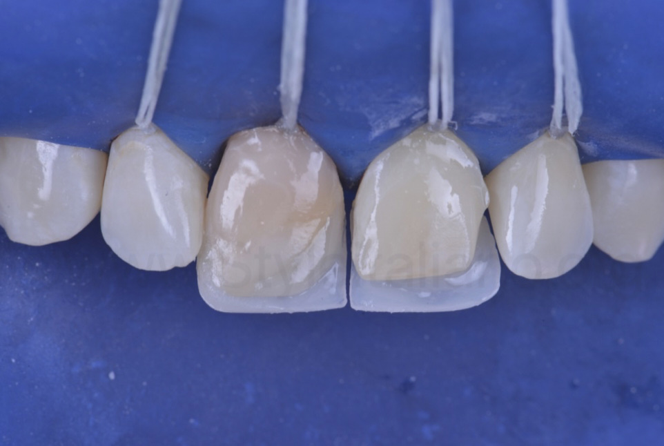palatal composite shell for direct incisor reconstruction