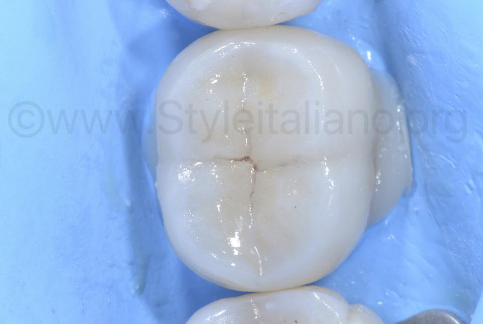 overlay partial restoration on lower second molar