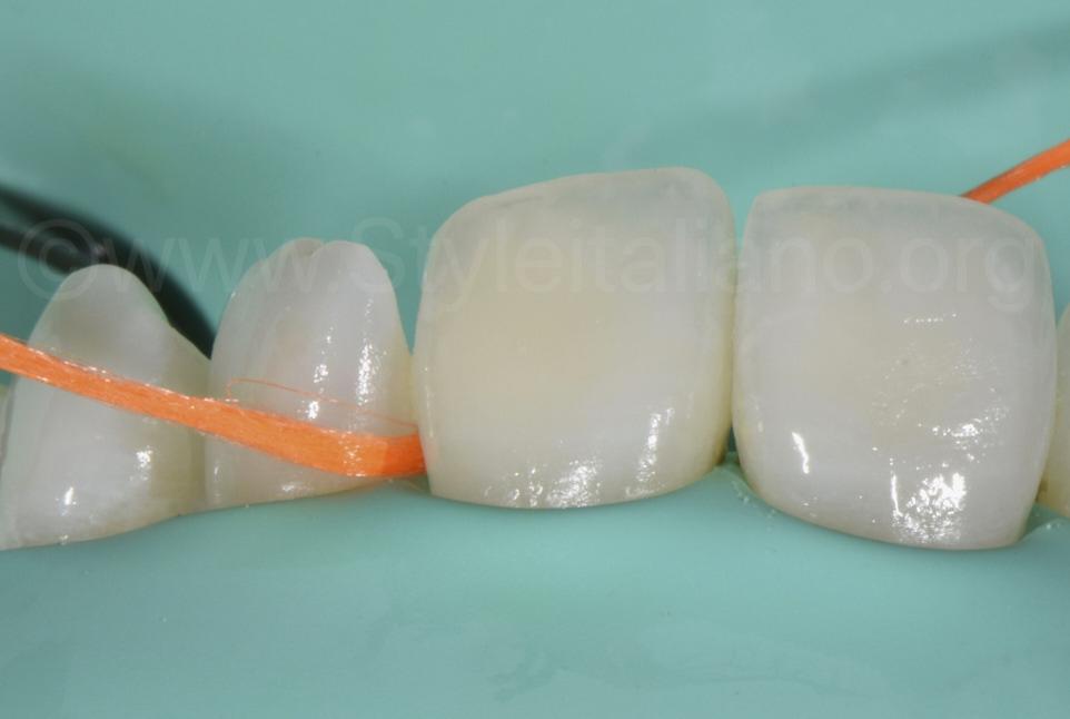 orange floss before infiltration
