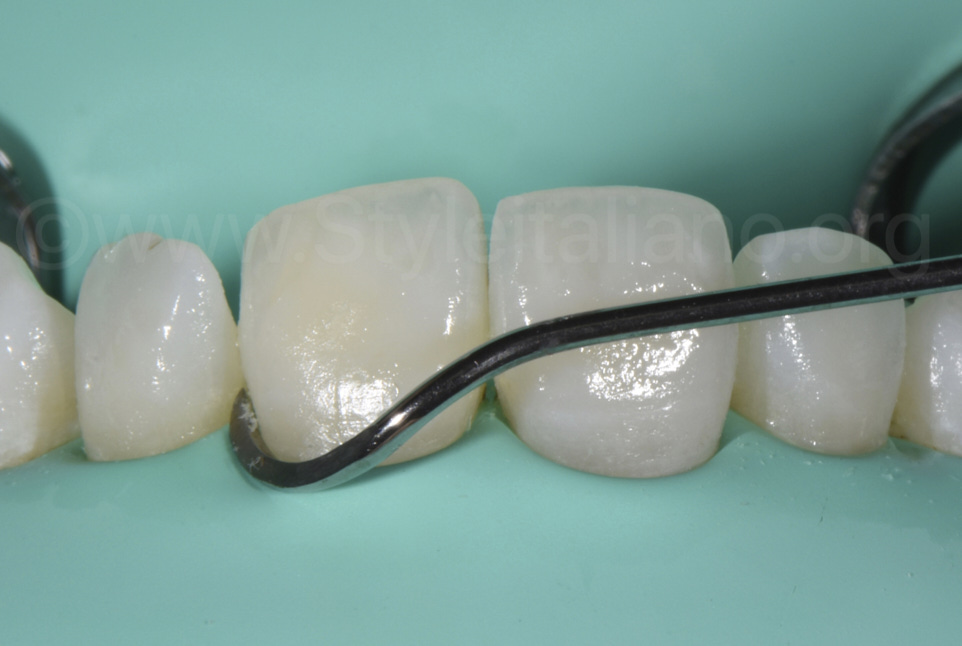eccesso instrument for excess resin removal