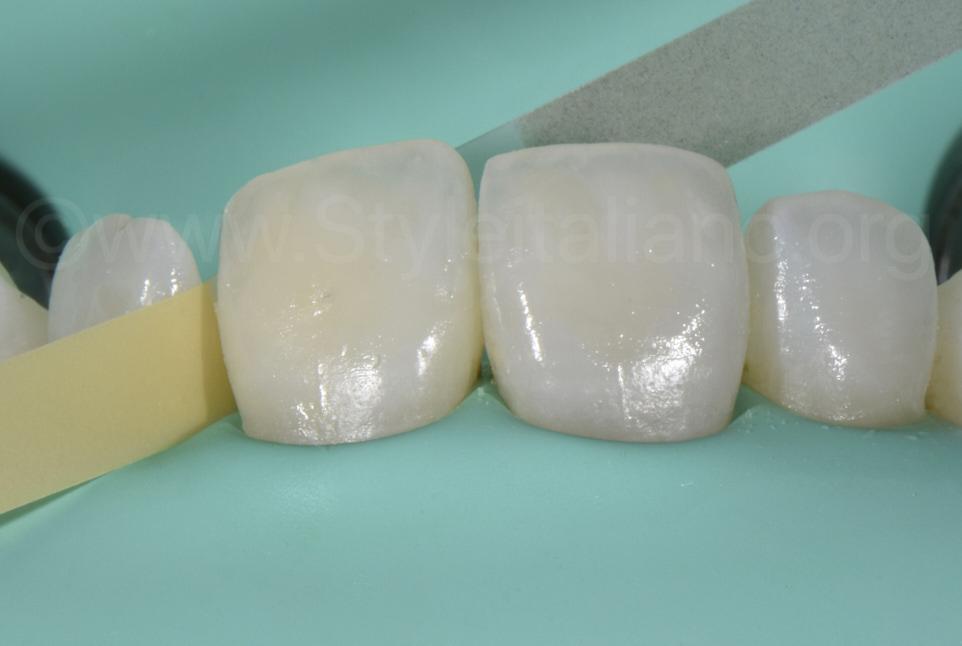 finishing and polishing proximal strip