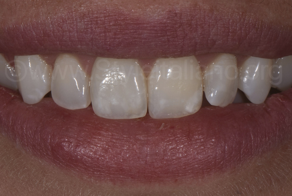 white spots on upper incisors in female smile