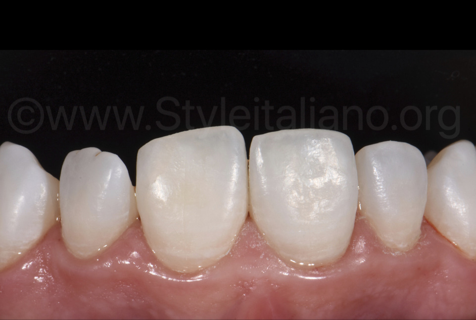 teeth after resin infiltration