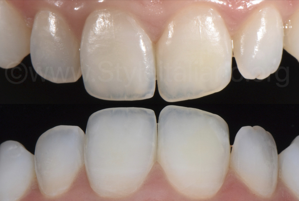 teeth after resin infiltration and polarised picture