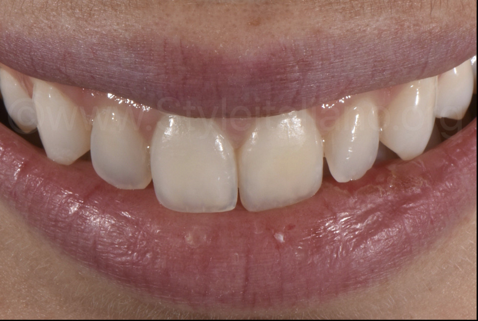 smile after infiltration treatment