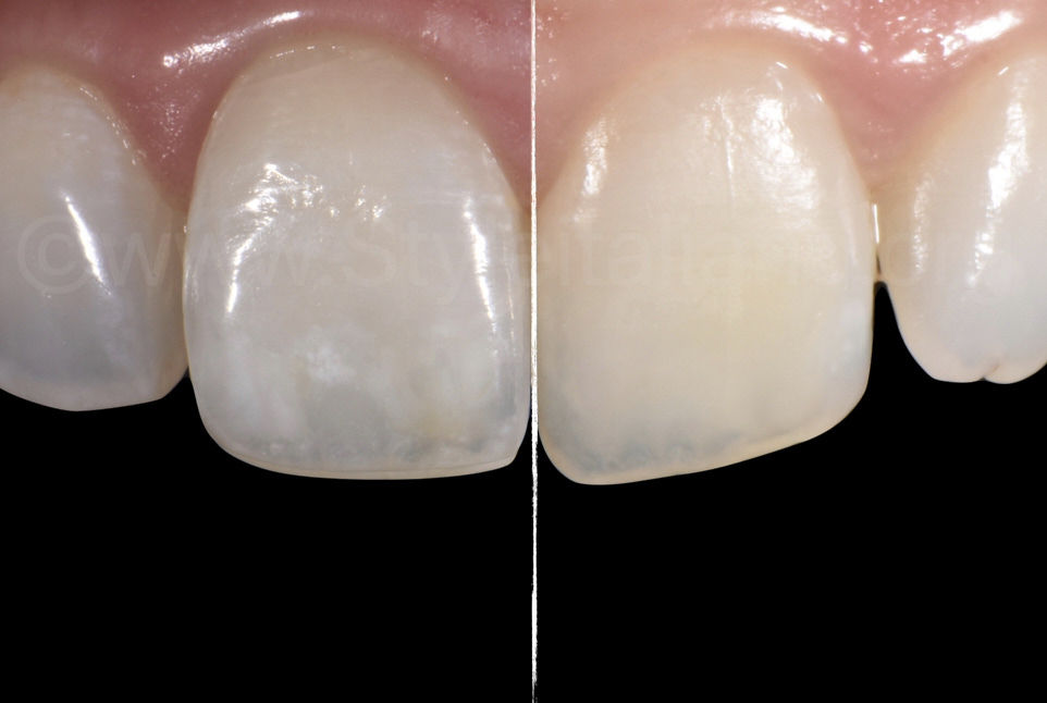 before and after resin infiltration of white spots on central incisors
