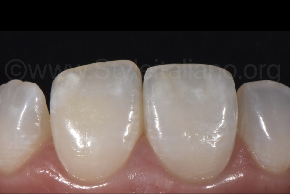 close up of white spots on incisors