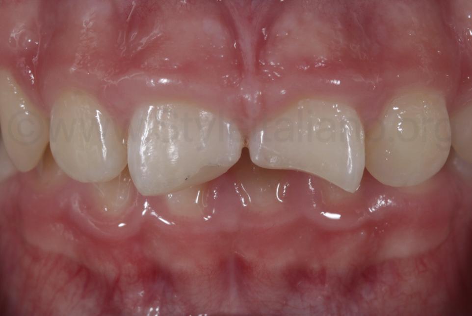 fracture upper incisors