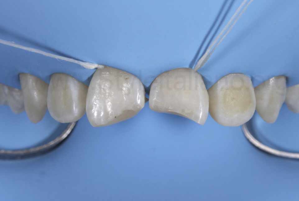 rubber dam isolation of upper teeth with floss ligatures