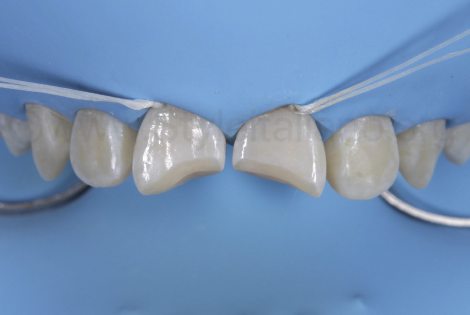 preapration of class IV cavities with bevel
