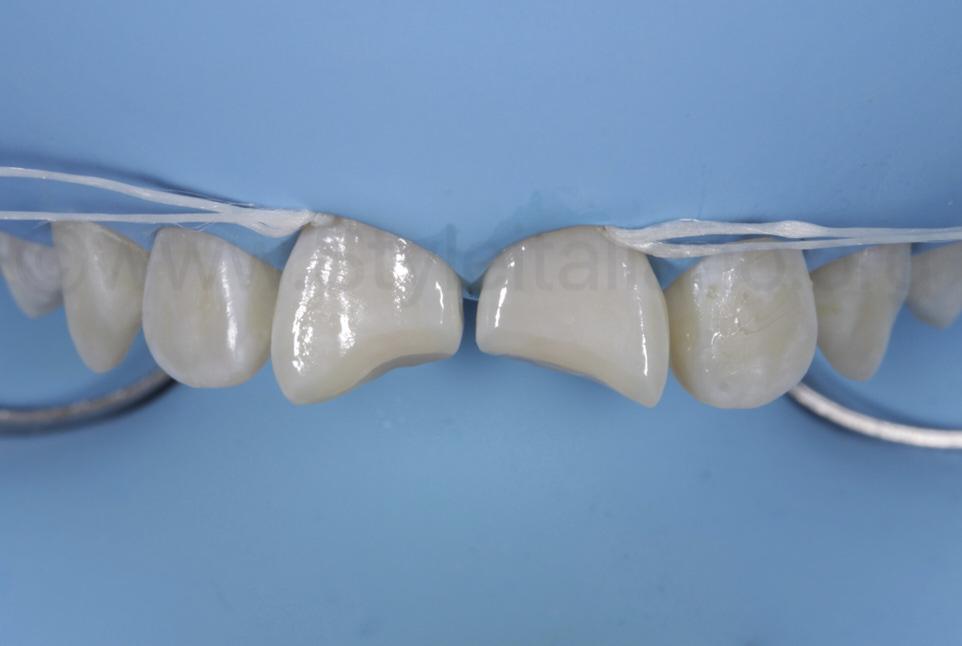 bonded enamel surface