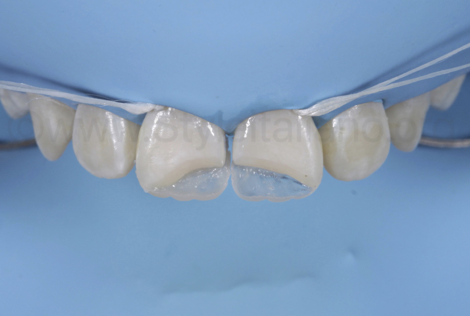 palatal composite shells on central incisors