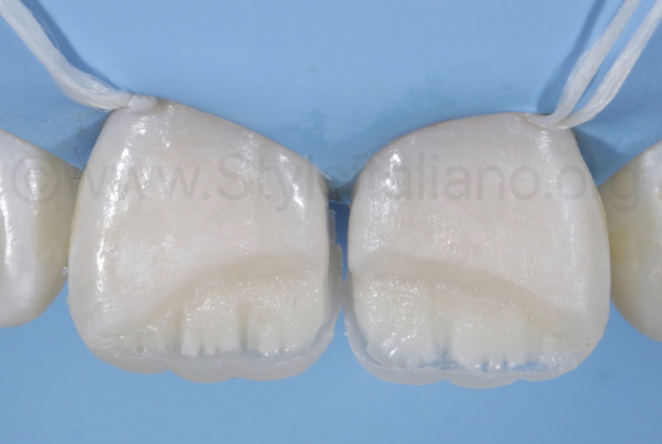 layering of mamelons with composite in class IV cavities