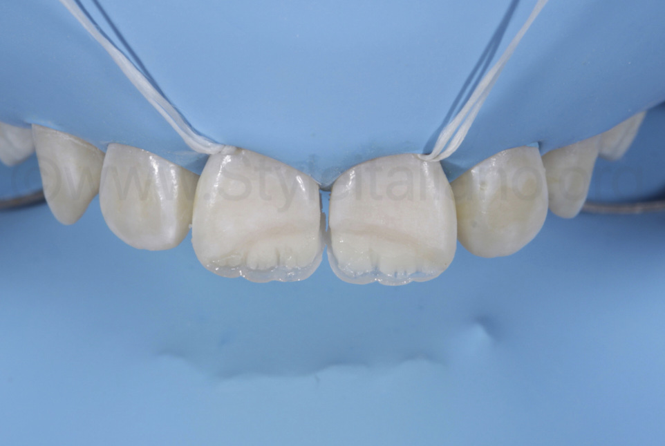 correction of incisal edge for restoration of child teeth