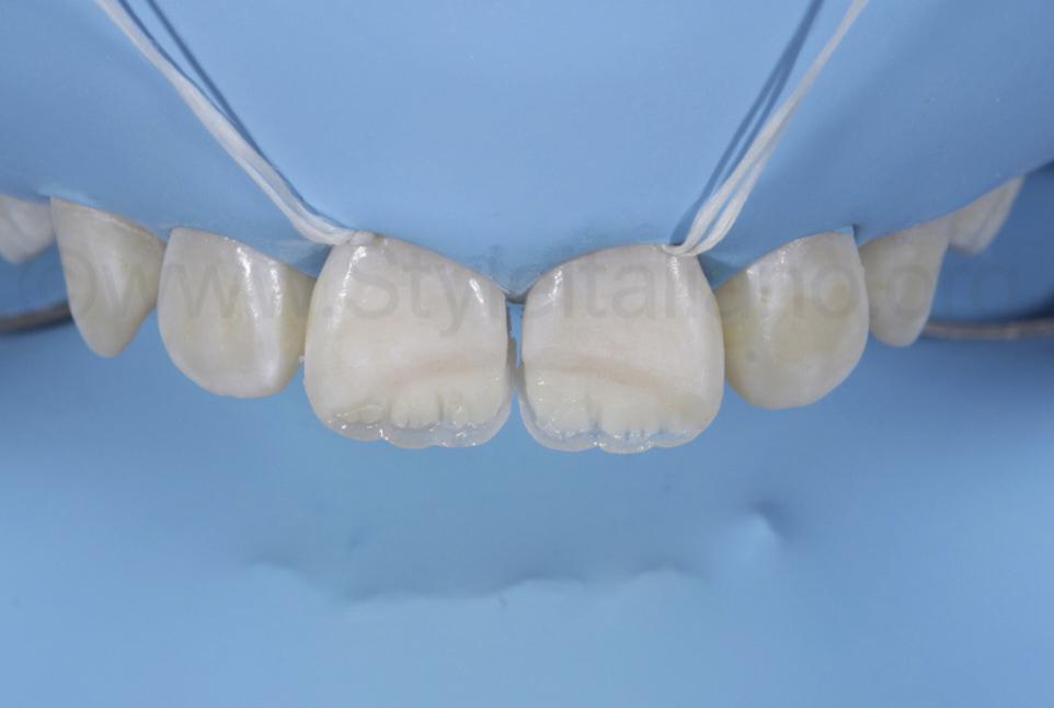 correction of incisal edge for restoration of child teeth