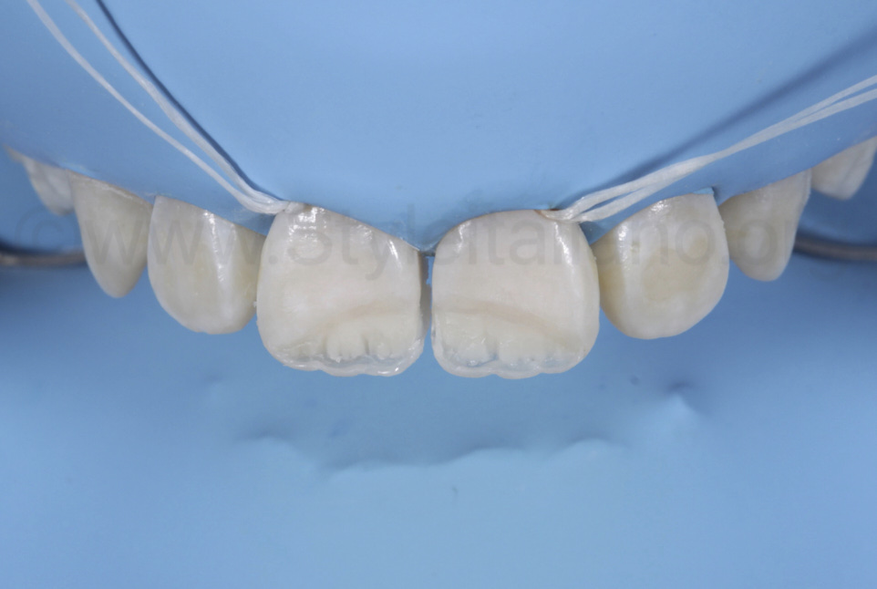 incisal halo reproduction with opaque composite