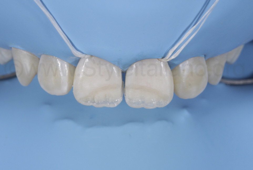 layering of clear translucent mass between tmamelons and incisal edge