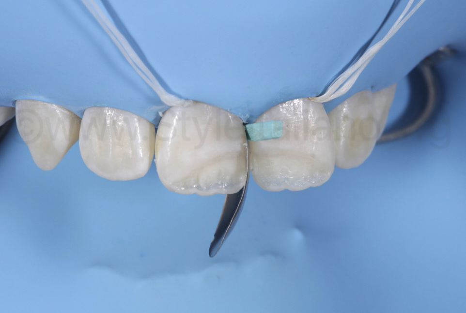 proximal restoration with posterior sectional matrix on incisor