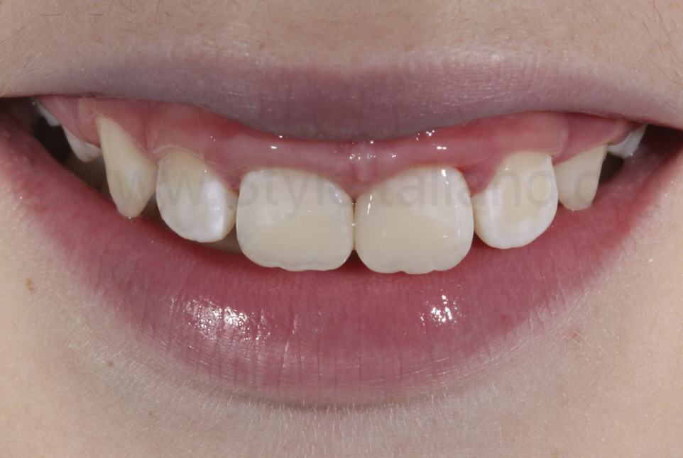 composite restorations before rehydration of teeth