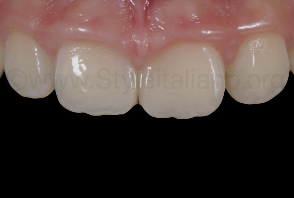 final aspect of composite restorations on upper incisors