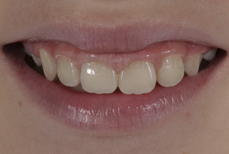 smile with restored teeth