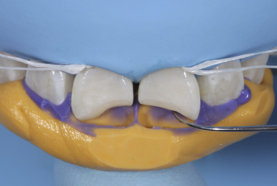 silicone index for restoration of fractured teeth