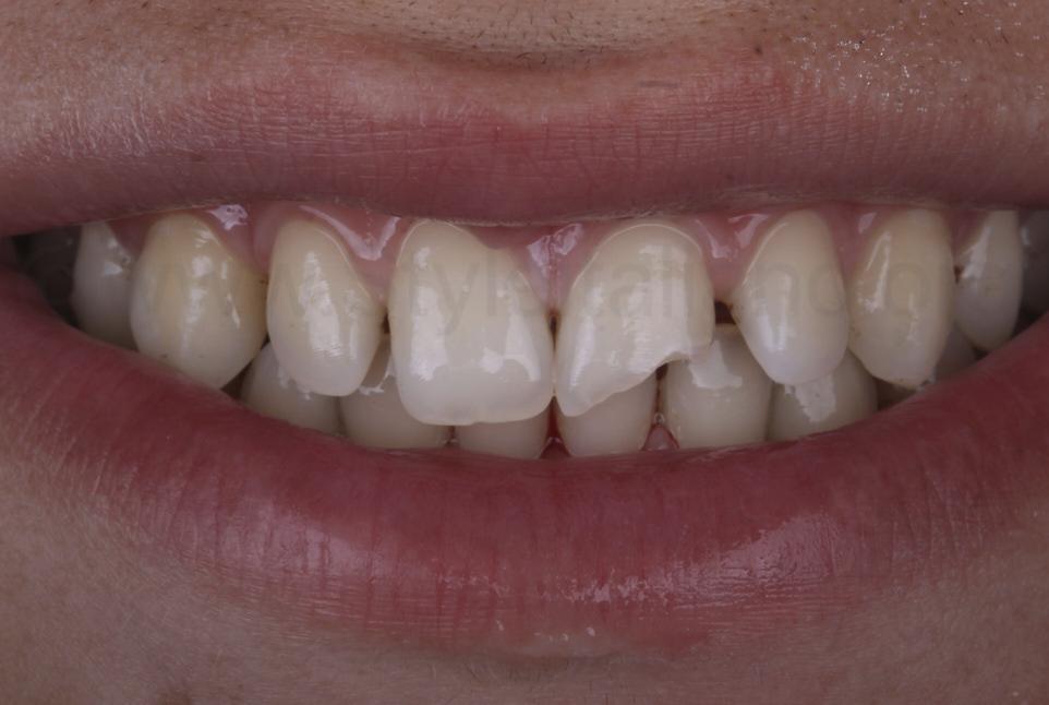 broken upper left central incisor