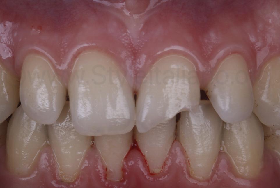 class IV cavity before preparation