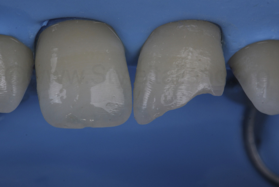 class IV cavity on central incisor with rubber dam isolation
