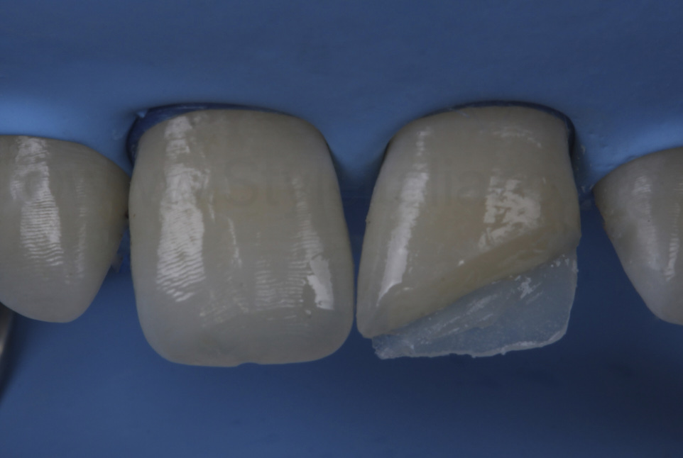 palatal composite shell on tooth 21