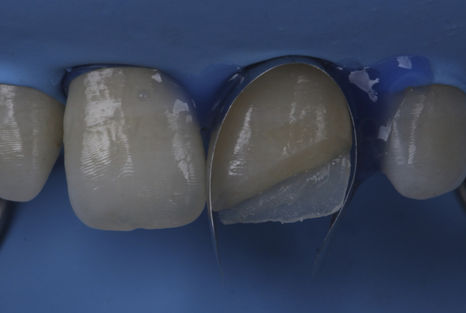 unica matrix for proximal and distal composite layering on incisors