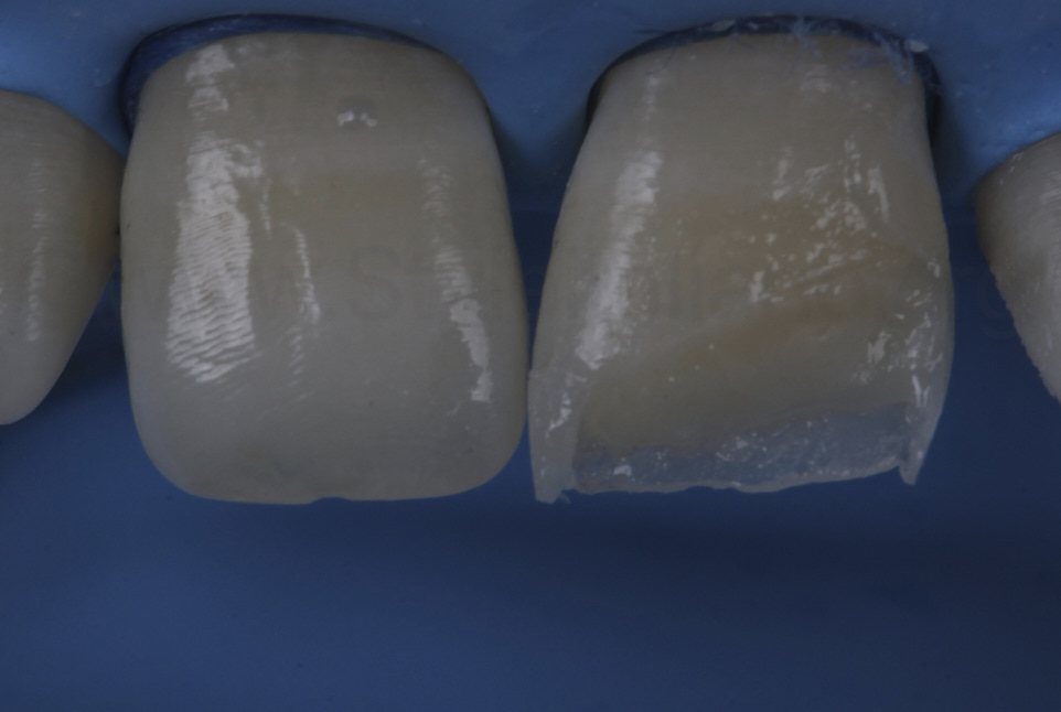 dentin layering in class IV cavity
