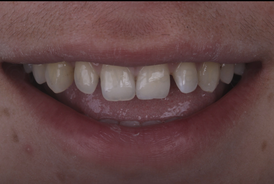 smile of patient with restored central incisor