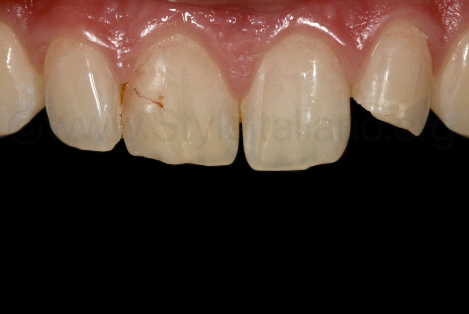 contrasted picture of fractured lateral incisor