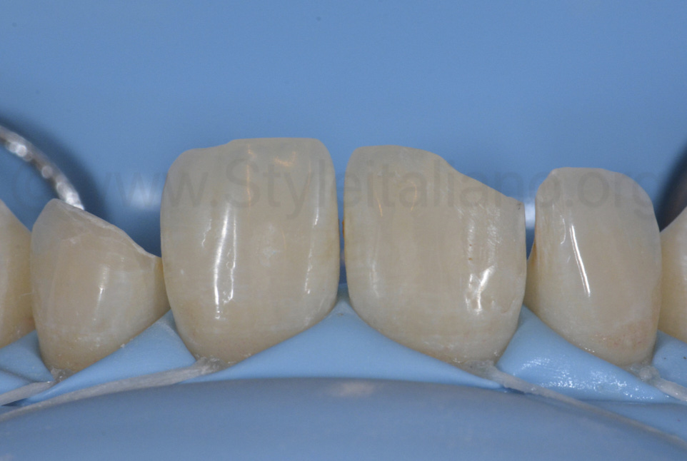 bevel class IV preparation on teeth 22 and 11