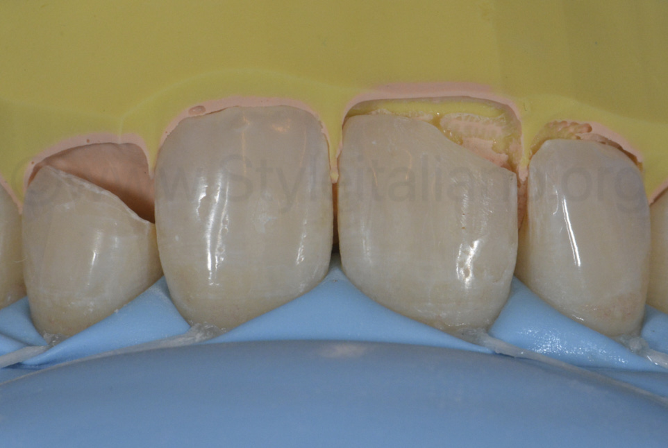 silicone index for palatal composite restoration