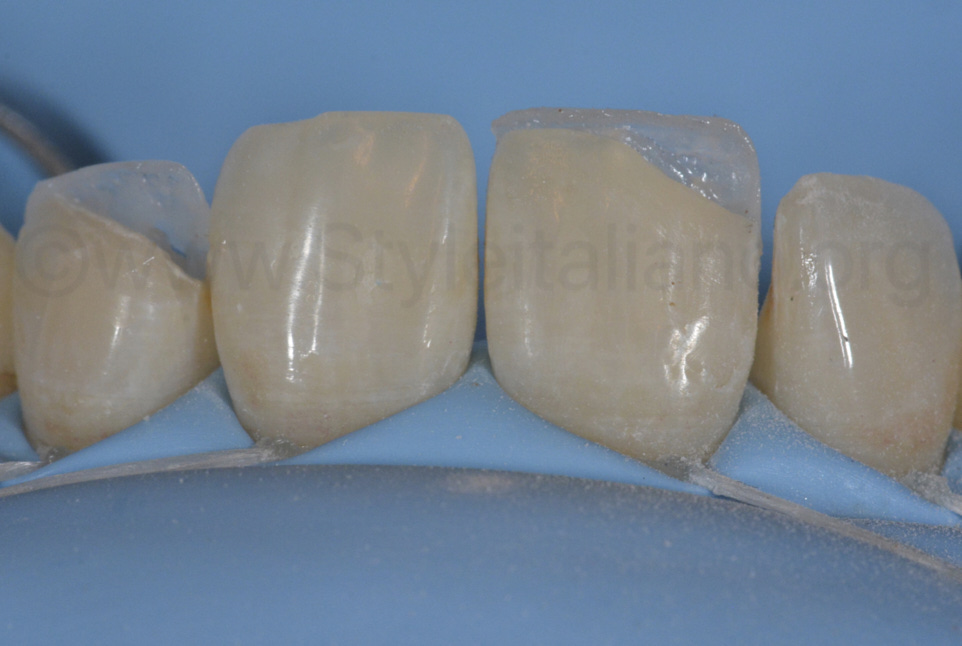 palatal composite shells on central and lateral incisors