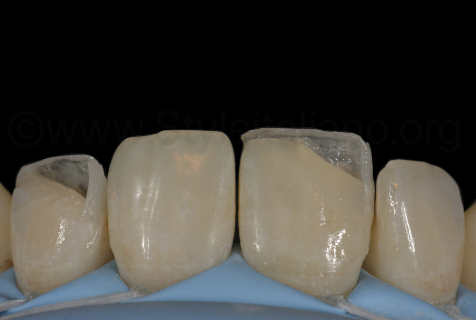 composite boxes outlining shape of incisor restorations