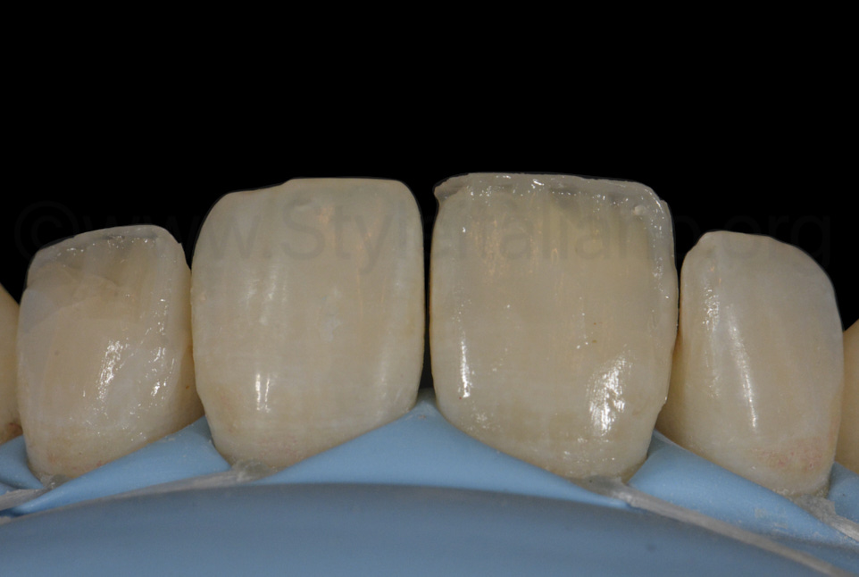 dentine composite layering