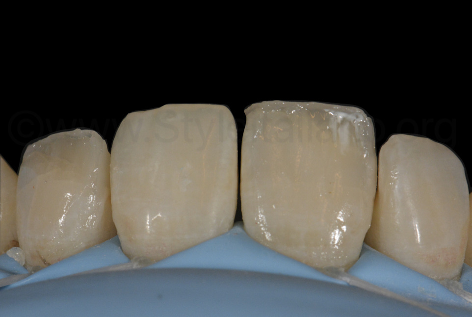 white stains in the incisal third to make composite restoration look real