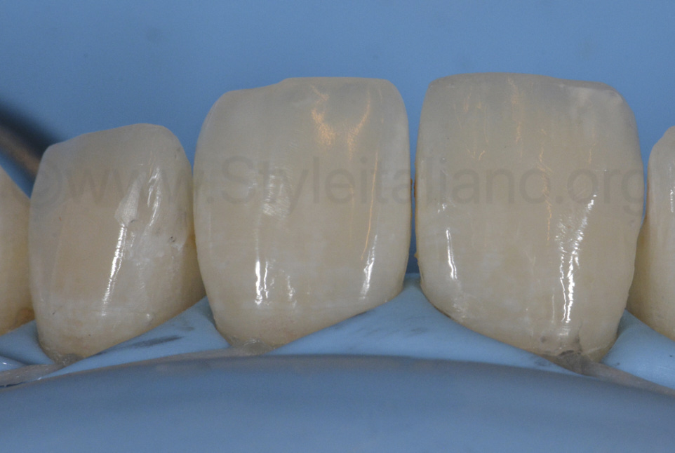 polished composite restorations