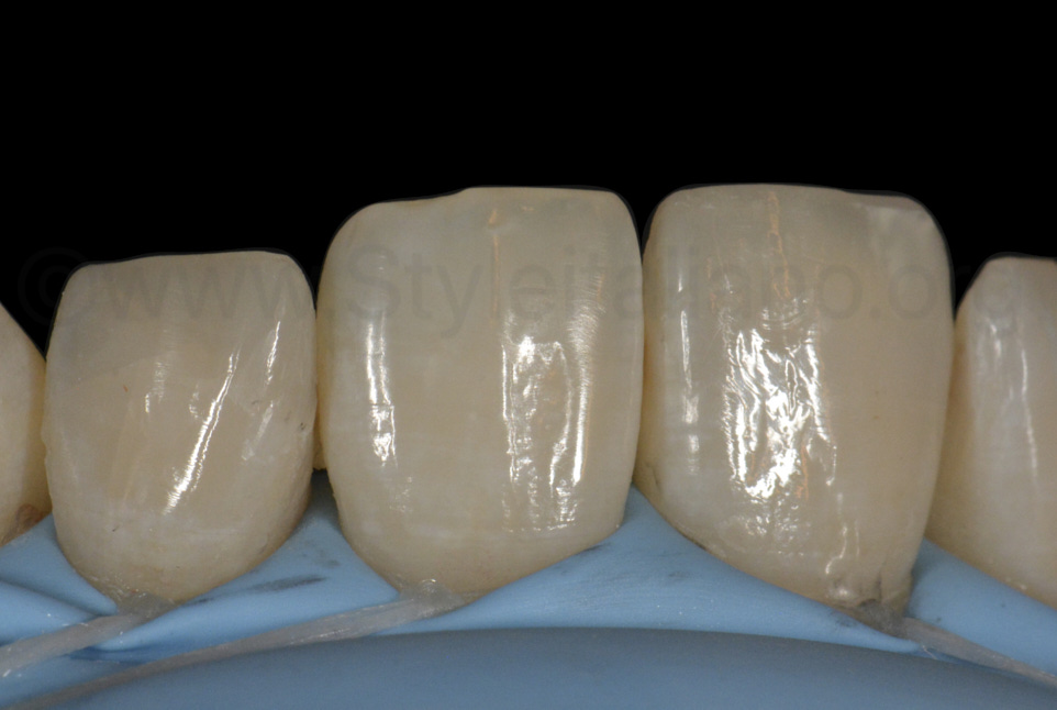 contrasted view of polished composite restorations