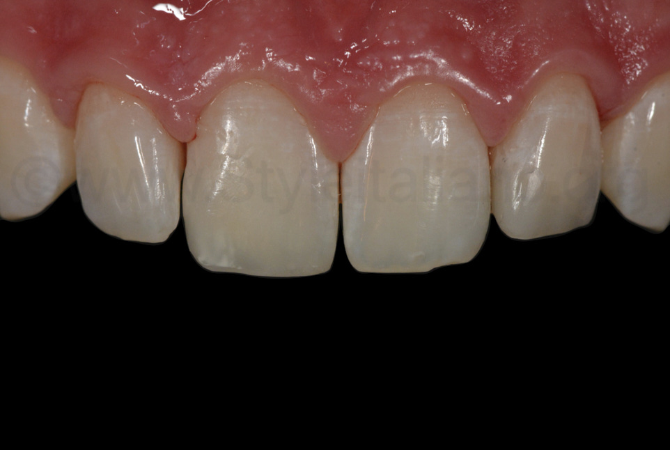 composite restorations on incisors after rubber dam removal